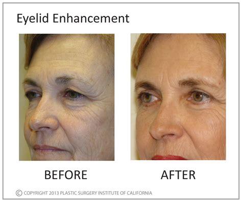 plastic surgery male enhancement picture 3