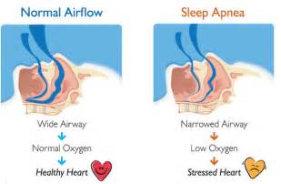 all known symptoms of sleep apnea picture 8