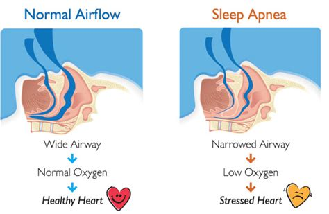 obstructive sleep apnea picture 2
