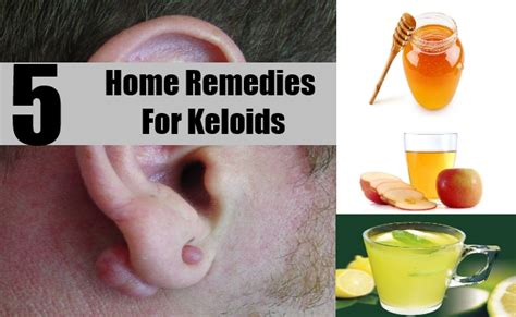 supplements for keloid picture 6