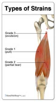 information on how to care for muscle pull picture 7