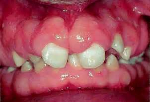 drugs affect on h and gums picture 14