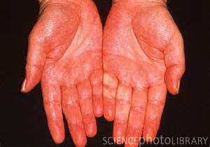 liver damage hands picture 11