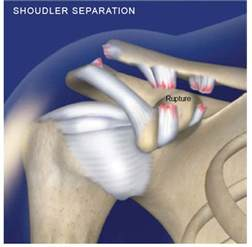 sudden joint pain picture 7