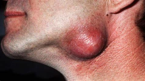 natural pilar cyst treatment picture 5