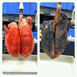 facts about why you shouldn't smoke picture 5