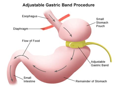 weight loss band surgery picture 1