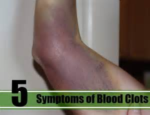 10 signs of blood clot picture 6