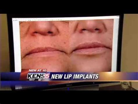 who does surgisil permalip implant in canada picture 7