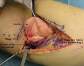 cyst beside colon picture 7