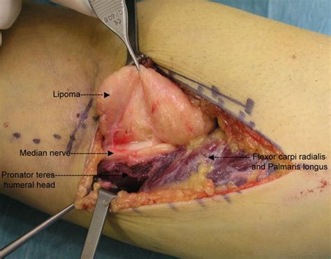 lump in forearm under skin picture 3