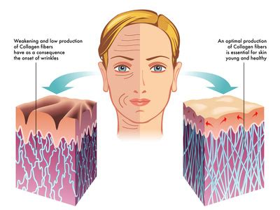 side effect of belo collagen picture 7