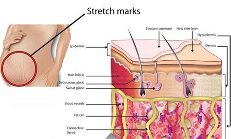 can you get stretch marks from waxing picture 5