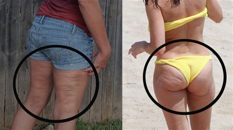 do all girls have cellulite picture 7