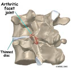 facet joint picture 6