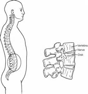 muscle spasms with tmds on the left side picture 17