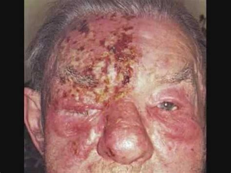 how long can herpes lay dormant picture 2