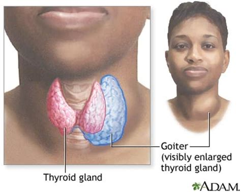 enlarged thyroid gland picture 6
