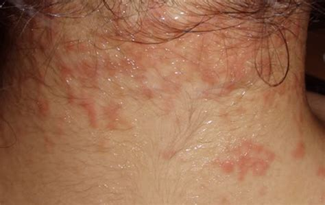 can thyroid cause red scalp picture 2