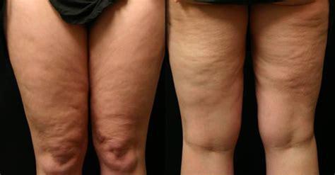 cellulite picture 6