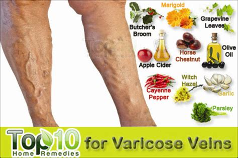 is gabon cure for varicouse veins picture 5