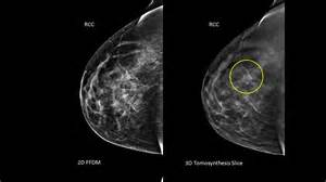 3d breast cancer animation picture 10