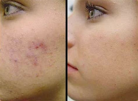 acne marks picture 2