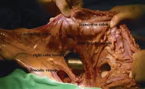Redundant transverse colon picture 1