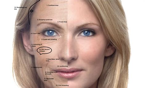 ageing skin picture 5