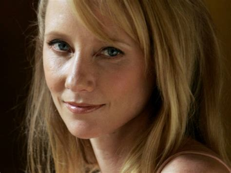 anne heche has herpes picture 7