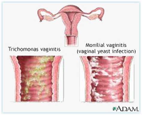 vaginal bacterial vaginitis picture 9