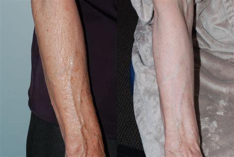 laser treatment for toenail fungus sun city az. picture 4