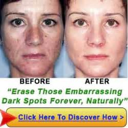 melas cream is best for dark patchy skin picture 7