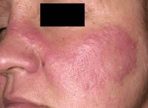 skin rash from sun exposure picture 7