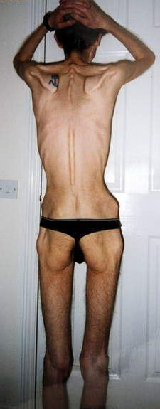 back muscle picture 13