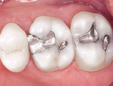 can dental hygients remove cement from h with picture 5