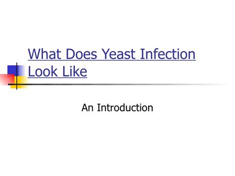 what does yeast infection look like picture 9