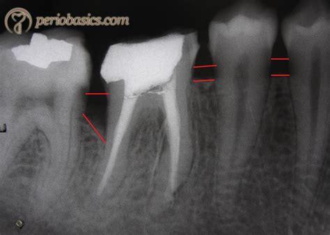 bone loss in teeth picture 2