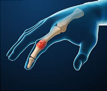 pain relief for arthritis picture 2