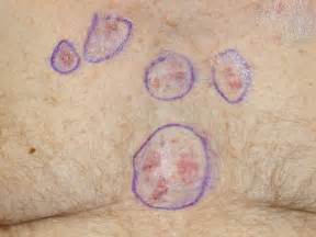 early signs of skin cancer picture 1