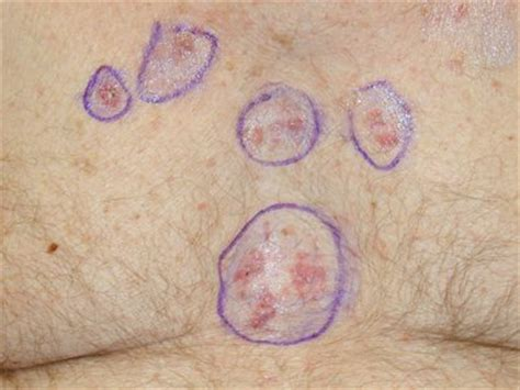 early signs of skin cancer picture 2