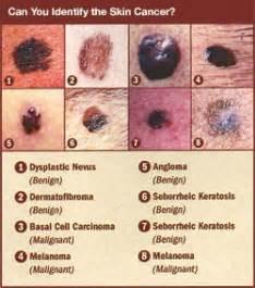 skin cancer cream picture 15