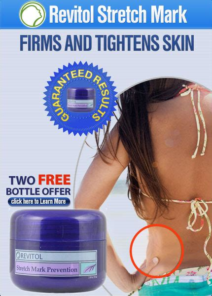 what retail store sells revitol stretch mark cream picture 3