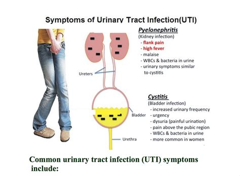 bladder infection with back pain picture 11