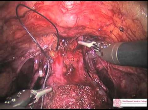 Radical prostatectomy picture 2