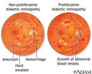 norman diabetic retinopathy picture 6