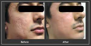 can a co2 total fx full face laser picture 3