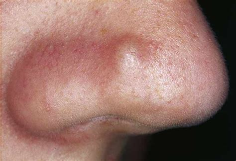 skin tag home remedies picture 9