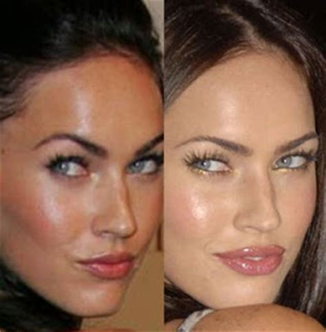 how much does lip augmentation cost picture 2