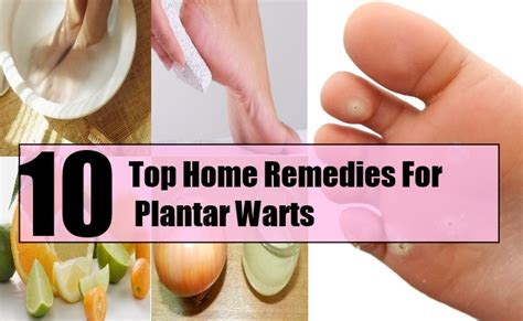 allternative remedy for warts picture 10